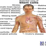 human-stem-cell-therapy
